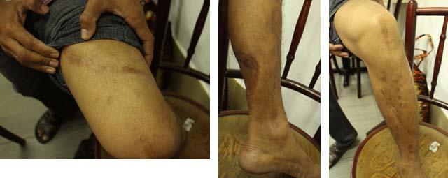 junnuri_subrahmanyam_scars